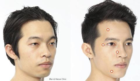Hình ảnh trước và sau phẫu thuật thẩm mỹ của một thanh niên ở Busan, Hàn Quốc. Các chấm tròn là nơi từng được