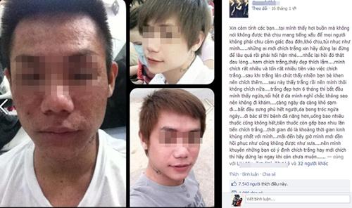 Khuôn mặt dị dạng của S. do sử dụng thuốc làm trắng. Ảnh: FB