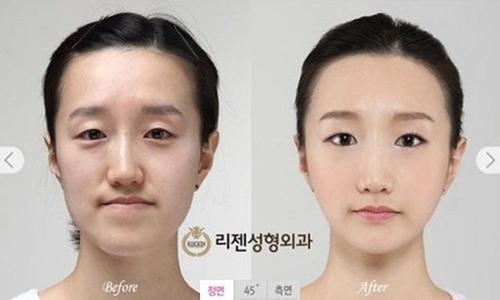 Một cô gái với gương mặt khả ái và bề ngoài như trẻ hơn 10 tuổi nhờ thẩm mỹ.