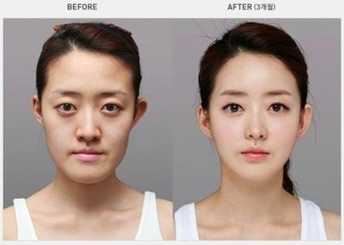 Sự thay đổi đến mức đáng kinh ngạc trước và sau thẩm mỹ của những cô gái Hàn luôn là đề tài được bàn tán xôn xao của đông đảo bạn trẻ.