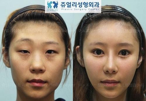 """Thực tế, phẫu thuật thẩm mỹ đang được xem là một cách để nhiều thiếu nữ Hàn Quốc """"xoay chuyển vận mệnh"""" của mình. Nhờ vẻ ngoài lung linh hơn trước, không hiếm cô gái đã có người yêu, việc làm và quan trọng là một cuộc sống tự tin, kiêu hãnh hơn."""