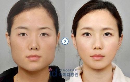 Một cô gái có khuôn mặt thon gọn hơn nhiều sau phẫu thuật. Ở Seoul, cứ 5 cô gái thì sẽ có 1 người đã qua bàn mổ chỉnh sửa vóc dáng, khuôn mặt của mình.
