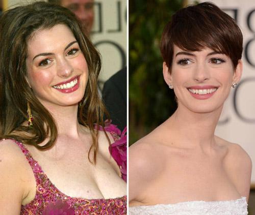 Celebrities-Golden-Globes-Now-9966-13897