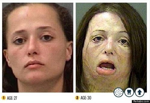 Chỉ trong 3 năm ngắn ngủi, từ 27 tuổi đến 30 tuổi, cơ thể của người phụ nữ này đã bị ma túy đá tàn phá nặng nề.