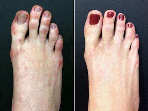 Toe-Shortening-Surgery1-5298-1396599437.