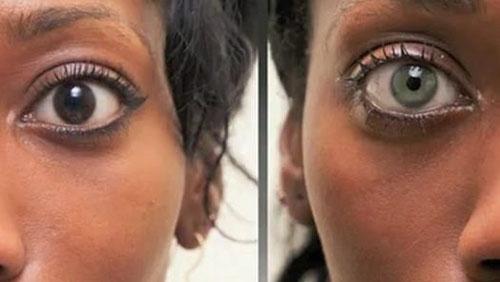 Không muốn phải mang kính áp tròng hàng ngày, nhiều người không hài lòng với màu mắt của mình đã tìm đê