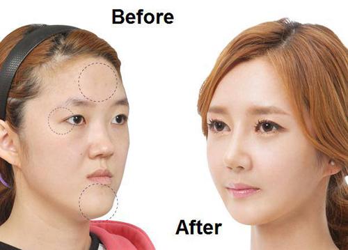 korea-best-plastic-surgery-3534-13971264