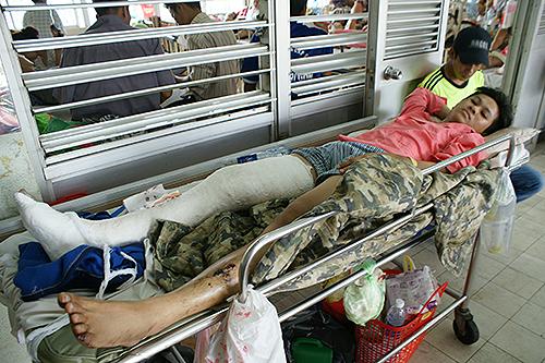 Toàn nằm bệnh viện với một chân gãy ở phần cẳng chân. Đầu vẫn còn sưng nhiều chỗ.
