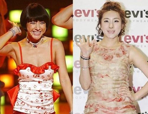 Seo In Young già hơn hẳn dù gương mặt lại căng hơn trước.