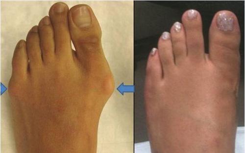 Bàn chân thô kệch trở nên thon gọn hơn sau khi cắt gọt và có thể đi vừa mọi kiểu giày.