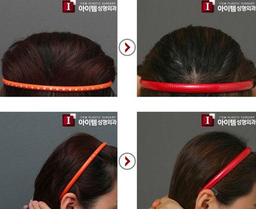 Sau khi chỉnh sửa đầu, các cô gái sẽ dễ tạo kiểu tóc hơn.