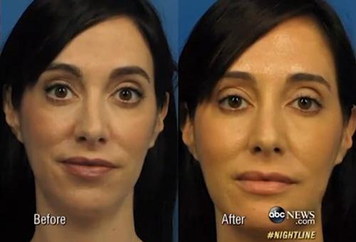 Lave trước và sau khi phẫu thuật.