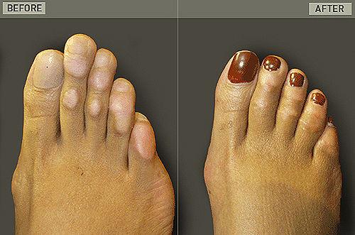 cinderella-surgery1-6068-1404093551.jpg