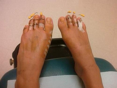 cinderella-surgery2-550x412-3801-1404093