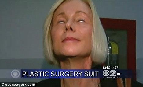plastic-surgery-5-9374-1407748606.jpg