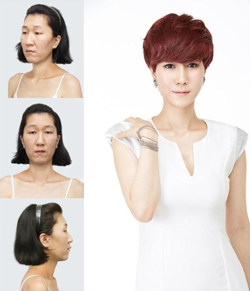 plastic-surgery-Let-Me-In-11-8747-140801