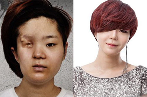 plastic-surgery-Let-Me-In-3-9862-1408012