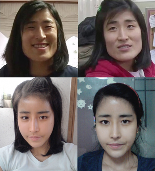 plastic-surgery-Let-Me-In-7-9174-1408012