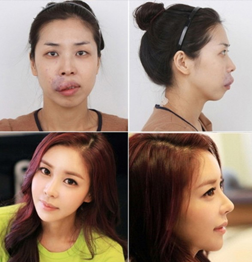 plastic-surgery-Let-Me-In-8382-140801247