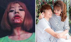 Sao Việt 23/8: Chi Pu mặt đầy máu, Khởi My ngồi lòng bạn trai