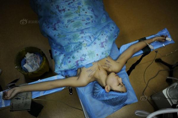 Fei Fei yên lặng nằm trên bàn phẫu thuật, lo lắng khi giao tính mạng mình vào tay bác sĩ.