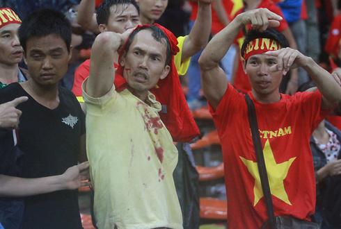 Một CĐV bị đánh chảy máu trên sân Shah Alam. Ảnh: Lâm Thoả.