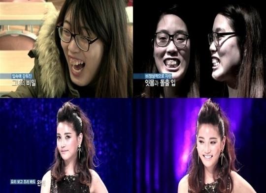 Thân hình đồ sộ, gương mặt kém sắc khiến Park Dong Hee phải chịu đựng nhiều lời trêu   chọc. Nhờ chương trình phẫu thuật thẩm mỹ Let Me In 4, Dong Hee đã có cơ hội đổi đời.