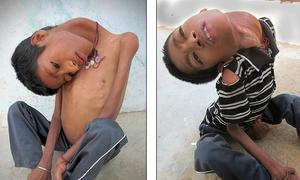 Cậu bé 12 tuổi Ấn Độ cổ lệch 180 độ vì bệnh lạ