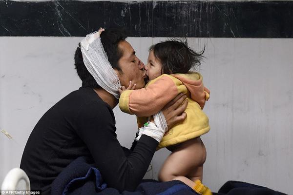 Suresh Parihar hôn con gái Sandhaya 8 tháng tuổi khi đang được điều trị trong bệnh viện ở   thành phố Kathmandu.