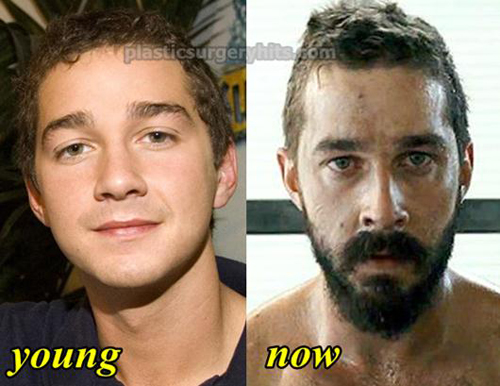 Shia-LaBeouf-Plastic-Surgery-7321-143521