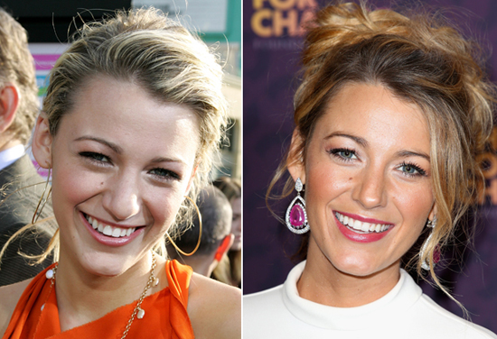 blake-lively-nose-job-9123-1435219113.jp