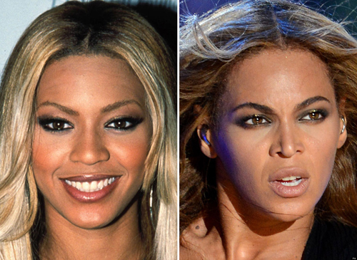o-BEYONCE-NOSE-JOB-facebook-1525-1435219