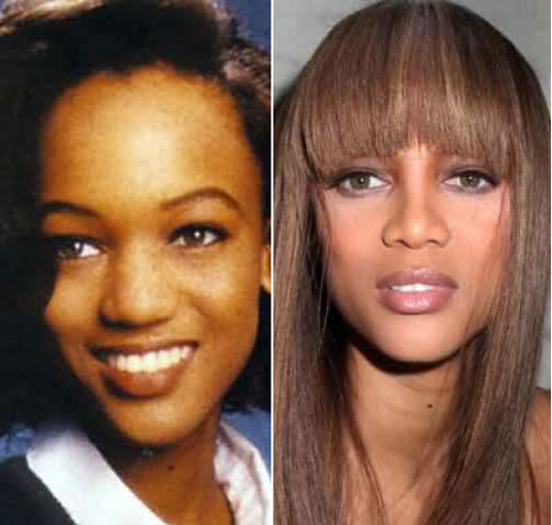 tyra-banks-before-and-after-8258-1435219