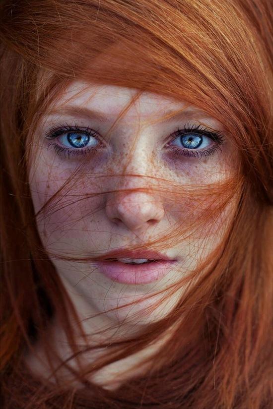 Do di truyền, những người tóc đỏ sở hữu làn da mẫn cảm hơn người thường.