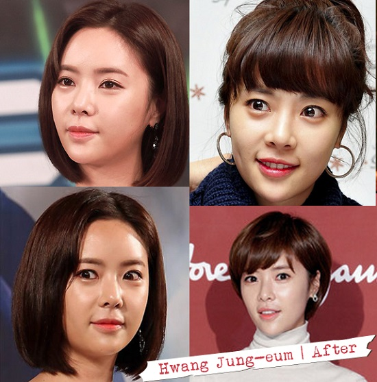 hwang-jung-eum-after-144645494-8331-2354