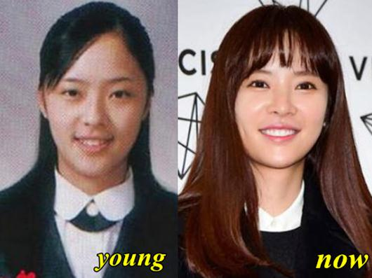 hwang-jung-eum-plastic-surgery-2495-8479