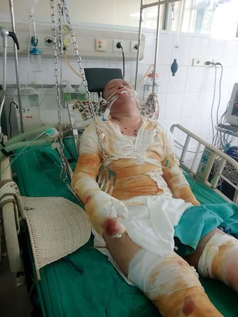 Hiện Thành phải nằm viện trong tư thế bị đeo xích để vết thương khô và hạn chế tiết dịch. Ảnh: Việt Anh.
