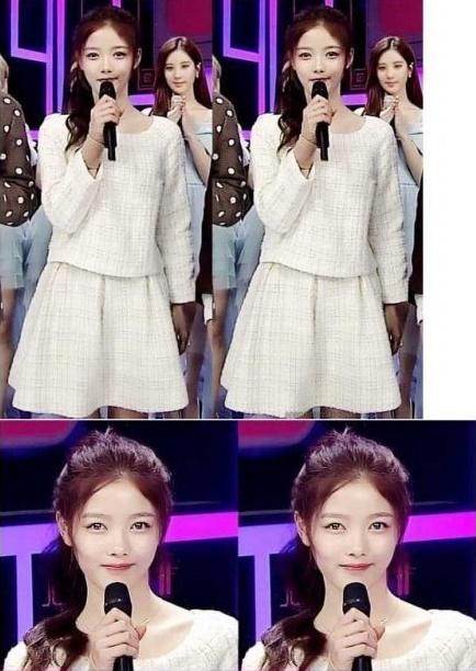 Kim Yoo Jung mất má phính dễ thương vì giảm cân quá nhiều