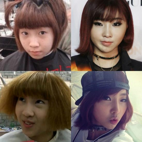 hani-minzy-vuong-nghi-van-phau-thuat-thm-my-4
