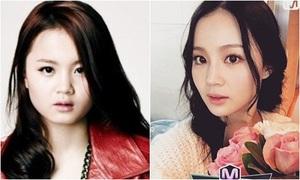 Sao 19 tuổi nhà YG bị nghi thẩm mỹ vì đẹp lên bất ngờ