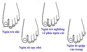 Hình dạng ngón chân nhìn thấu con người bạn