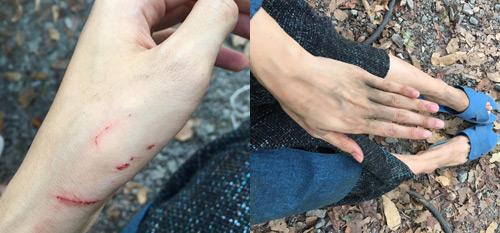 Chân tay Hạ Vi lấm lem và trầy xước vì quay cảnh này.