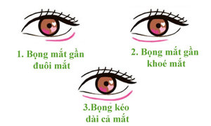 Bọng mắt tiết lộ gì về con người bạn