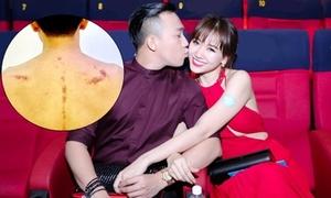 Chọc vợ không biết cạo gió, Trấn Thành bị Hari Won 'phản ứng'