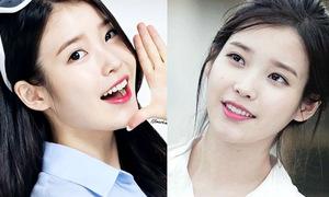 Những idol Kpop có nụ cười 'vạn người mê'