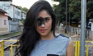 Cô gái tự hào khi sinh ra có vết chàm 'xấu xí' trên mặt