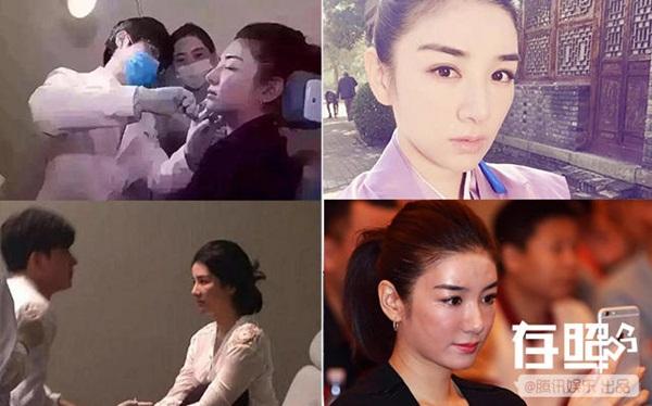 nhung-sao-nu-cbiz-lay-lai-nhan-sac-sau-dao-keo-that-bai-4