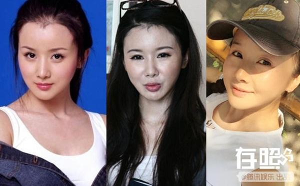 nhung-sao-nu-cbiz-lay-lai-nhan-sac-sau-dao-keo-that-bai-3