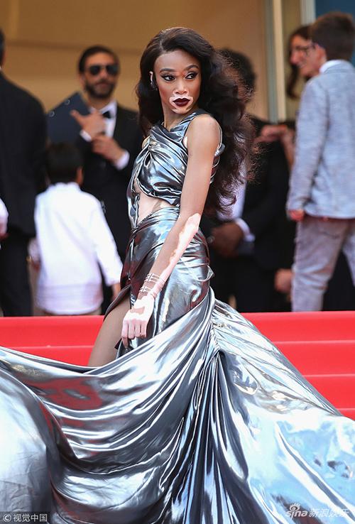 Người mẫu da bạch tạng Winnie Harlow chọn trang phục dài cả mét để chặt đẹp các khách mời.