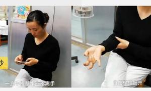 Bàn tay biến dạng vì sử dụng điện thoại không ngừng suốt một tuần